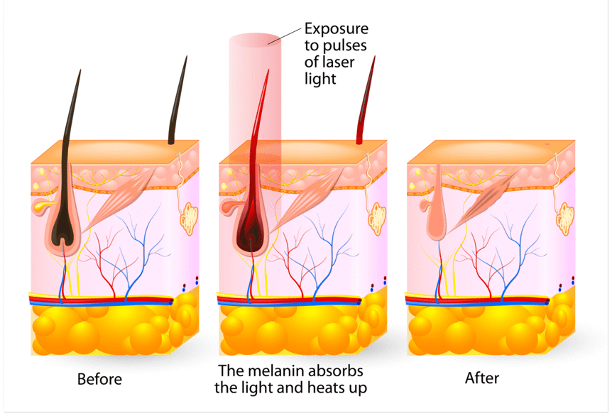 Diagram of Laser Hair Removal Process