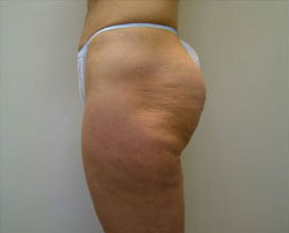 Before Cellulite Reduction