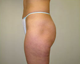 After Cellulite Reduction